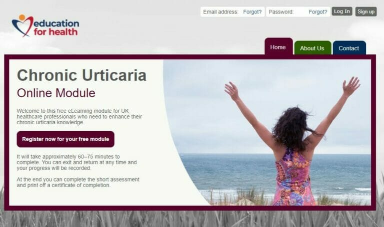 chronic urticaria homepage